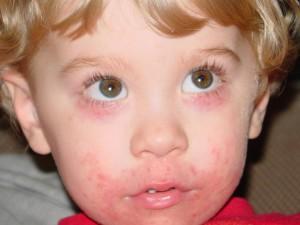 Лечение дерматита у детей от слюней thumbnail